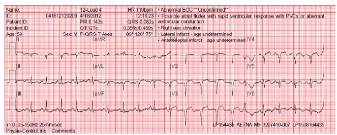 Aetna Ambulance Transmits 12 lead EKG