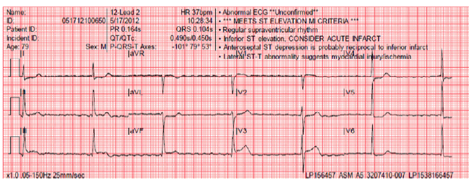 ASM Ambulance transmits 12-lead EKG